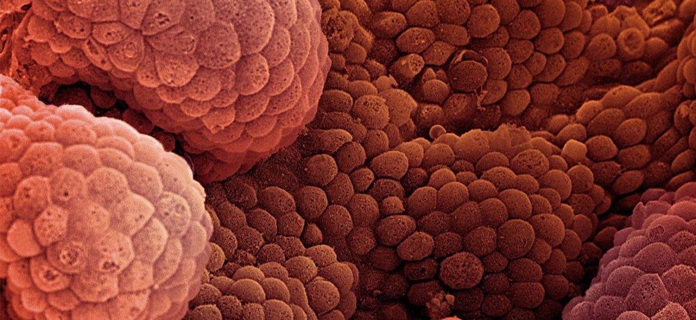 Καρκίνος Προστάτη